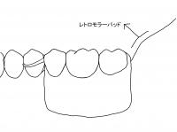問題ある義歯