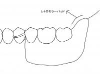 理想的な義歯