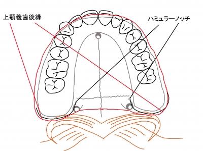 上顎義歯後縁