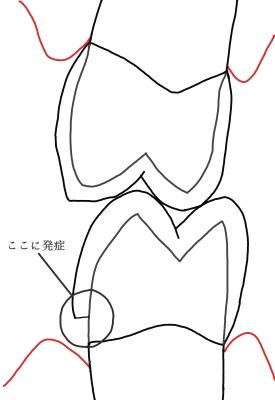 WSD 図