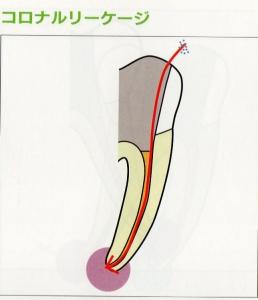 コロナルリーケージ1