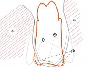 義歯の範囲