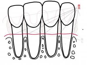 歯周病から治癒