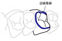 辺縁隆線2