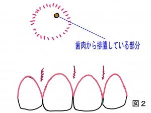 根尖病巣口腔内