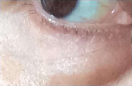 目下の深皺