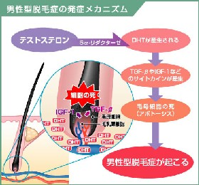 男性ホルモン、アンドロゲンの一種であるテストステロン(TS)は、前立腺や毛包などに存在している「5α-リダクターゼ」という還元酵素によってジヒドロテストステロン(DHT)に変換されます。サプリD5α-Rは、抜け毛の原因である5α-リダクターゼの活性を抑制する生薬エキス