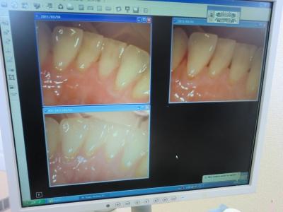 その場でデータですぐ説明してもらえるので歯の状態がよくわかります