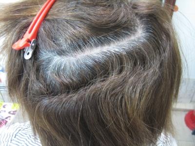 ダメージ毛の修復