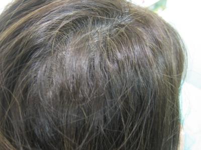 チリチリした髪 美容室の失敗 ストレートパーマ