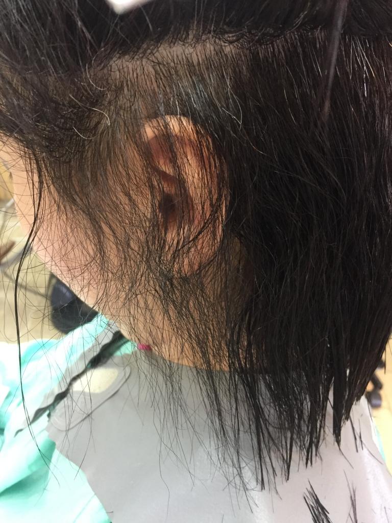 もみあげちりちり 耳周りのチリチリ毛 えりあしのチリチリ毛 首周りの髪の毛が醜くちりつく件
