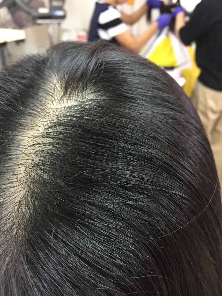 美容室で失敗された 髪質改善縮毛矯正 ストレートパーマの失敗 トリートメントの失敗