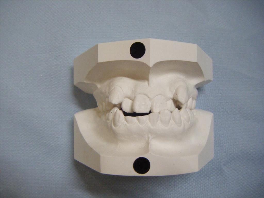 矯正歯科治療前