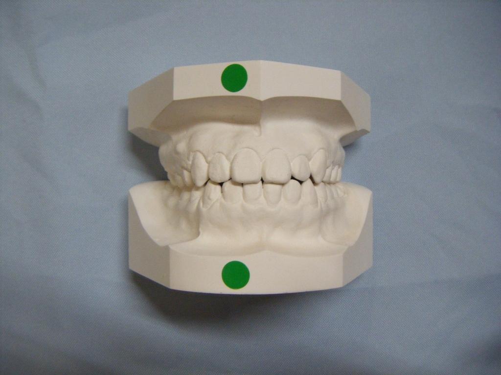 矯正歯科治療後