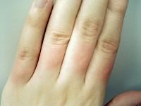 指毛脱毛2回目