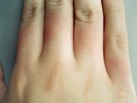 指毛脱毛2回目2