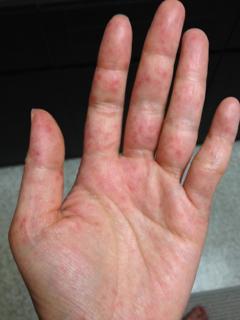 手足口病1