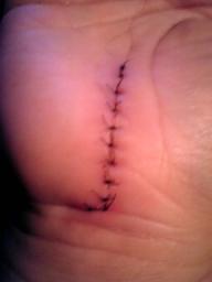 手術から4日目