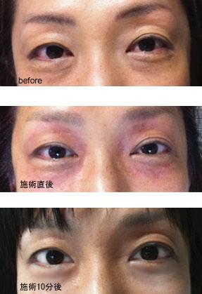 麻疹 周り 目 の 蕁