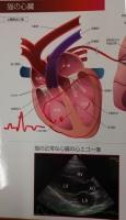 シリウス心臓