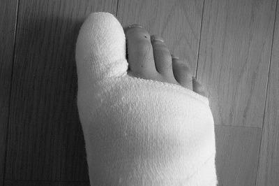 痛風の右足