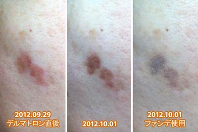 デルマトロン治療直後の写真