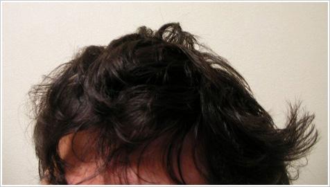 髪のクセはひどくなるわ、ボリュームはでるわで天然パーマの人には悩みの深い季節がやってきました! 縮毛矯正がてっ とり早いけど、お金はかかるし期間は限られるし\u2026