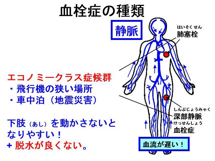 エコノミー クラス 症候群 症状