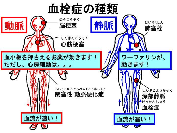 動脈血栓症、静脈血栓症と、抗血栓療法をまとめてみたいと思います。 動脈血栓症(脳梗塞、心筋梗塞、
