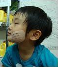 KT歯痛1