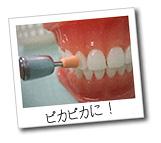 PMTC(歯のクリニーング)を行うと、歯はピカピカになります