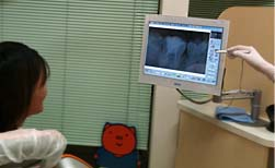 勝田・鈴木歯科医院のデジタルレントゲン写真