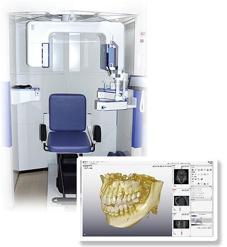 鈴木歯科医院のレントゲン:コンビームCT