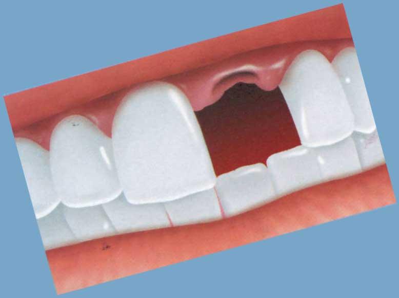 欠けた前歯