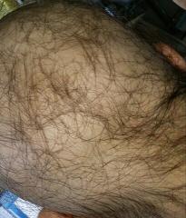 130917後ろの髪の毛