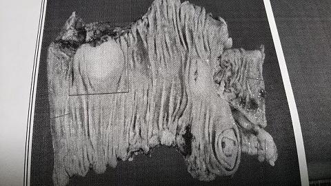 190108_大腸の開き