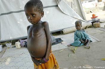 報じられなかった10の人道危機 子どもの栄養失調1