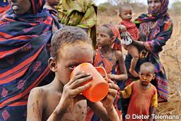 報じられなかった10の人道危機 子どもの栄養失調2