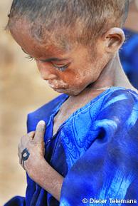 報じられなかった10の人道危機 子どもの栄養失調3