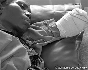 報じられなかった10の人道危機 コンゴ民主共和国1