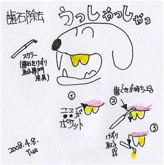 20080407歯石除去0