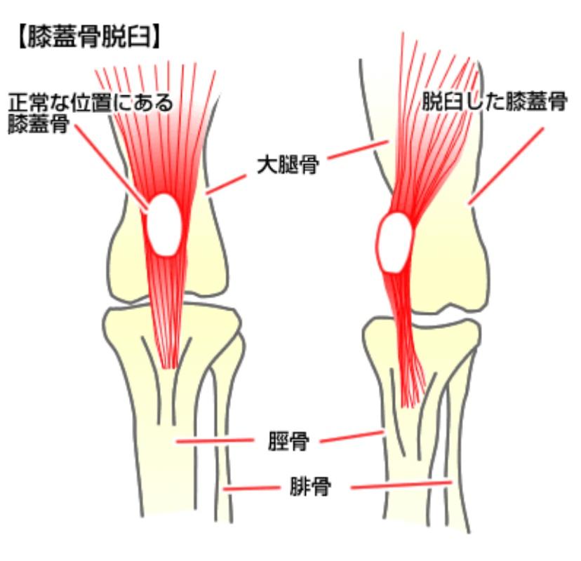 犬 膝蓋骨脱臼(パテラ)の図