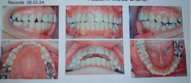 顎関節治療後