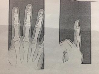右手のレントゲン写真