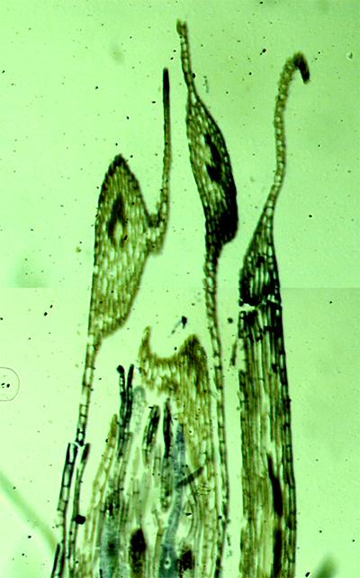苔の雌性株/きらら舎