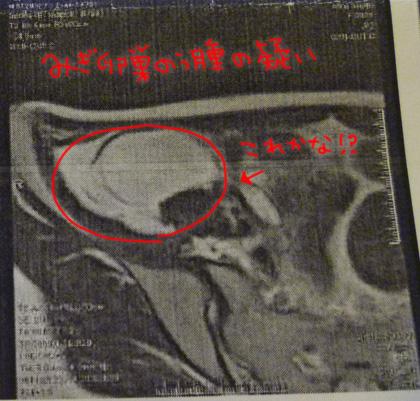 卵巣膿腫 MRI
