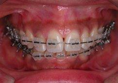 正面から見た上の歯