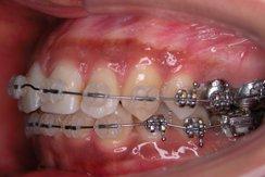 左からみた上の歯0213