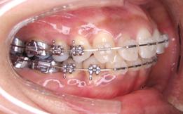 右からの歯