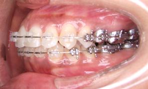 左からの歯